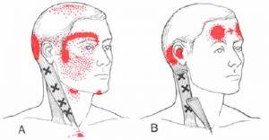 sindrome-cervicale-di-barrè-lieou4