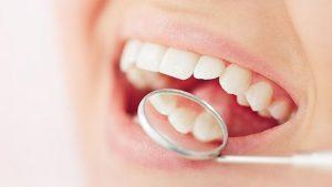 Oral_HealthyTeeth_001213_616x347px_A0917